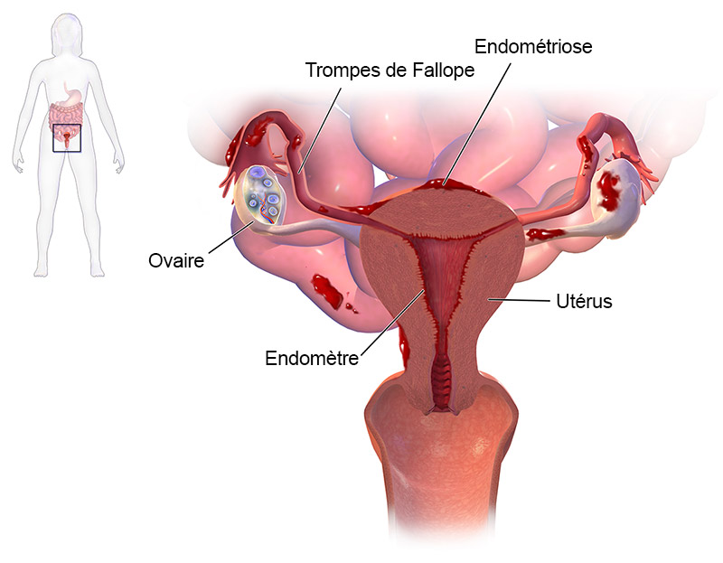 schema-endometriose