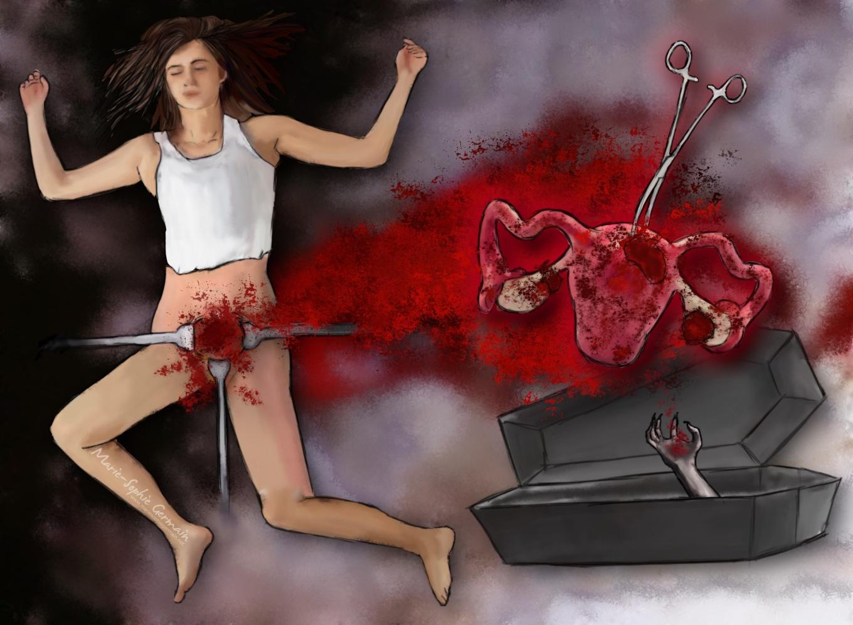 Endometriose Hysterectomy 2